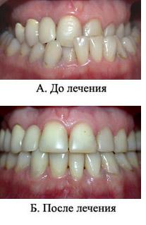 http://s3.uploads.ru/t/UueZW.jpg