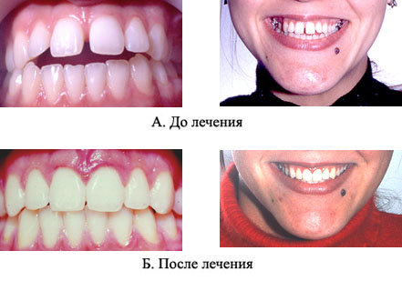 http://s3.uploads.ru/t/XOdY3.jpg