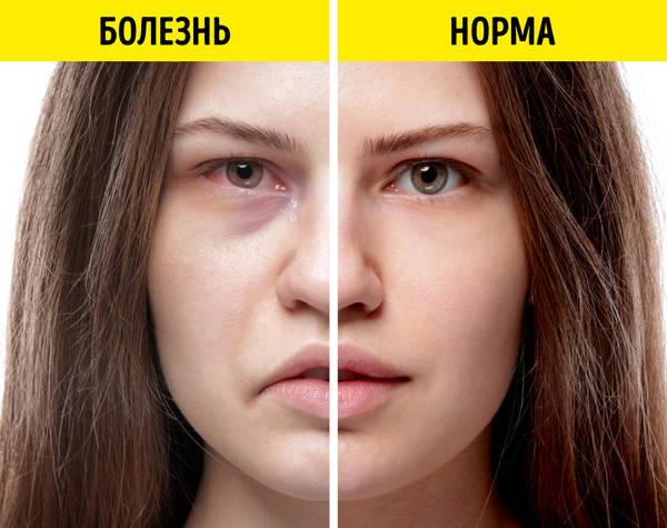http://s3.uploads.ru/t/bAzmE.jpg