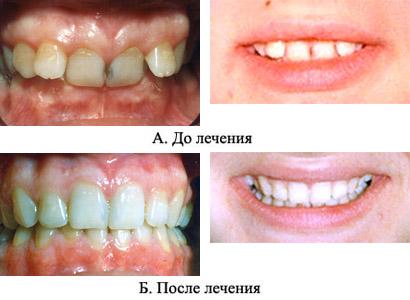 http://s3.uploads.ru/t/gt7dq.jpg