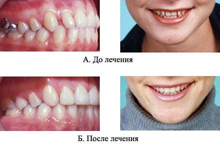 http://s3.uploads.ru/t/yEAYh.jpg