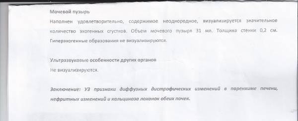 http://s3.uploads.ru/t/rL012.jpg